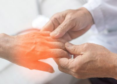 Neuropathy Treatment